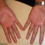 手汗を止めるための7つの方法
